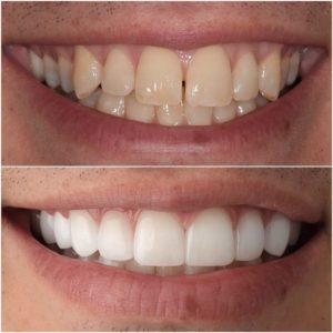 Porcelain Veneers dentist in Los Angeles